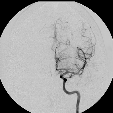 Catheter-based clot extraction image